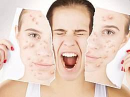 什么是激素脸?激素脸的常见症状有哪些