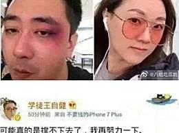 王自健被妻子家暴细节 打耳光烟头烫太残暴
