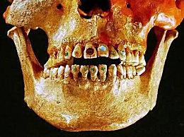 史前牙齿竟镶满钻石 盘点轰动全球十大罕见考古发现