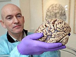 关于人脑的奇闻趣事 人类大脑存储高达93万G
