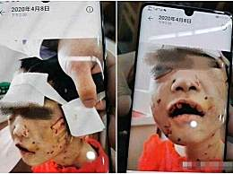 黑龙江被虐女童出院 于6月2日出院回家进行康复