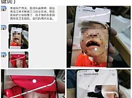黑龙江遭虐打女童已出院