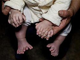奇闻!男婴患罕见多指症 竟长15根指16根脚趾