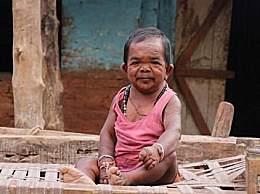 奇闻!印度惊现不老男童 年过半百却像个婴儿!