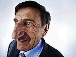 世界上鼻子最大的人 男子鼻子高8.8厘米