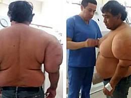 奇闻!秘鲁男子患罕见怪病 身体肿的像气球