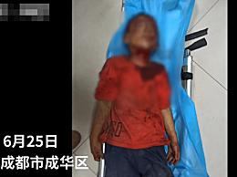 殴打8岁男童嫌疑人已被刑拘 地下室暴打两小时,致男童身受重伤