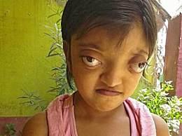 印度惊现青蛙人 女童眼睛大的像青蛙