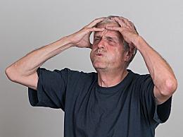 中年男性如何预防秃顶?做好日常4件事防止脱发