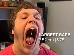 世界上最大的最 美16歲男孩破吉尼斯