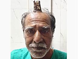 奇闻!印度一男子头上长出犄角 医生见了大惊失色