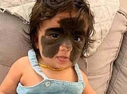 美女婴患罕见皮肤病 脸上天生长蝙蝠侠面具