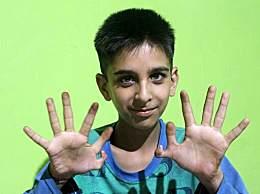奇闻!印度男孩长12根手指 称是上帝的旨意