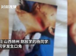 少年遭同学割喉滞留医院53天