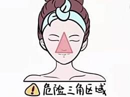 女孩挤痘引发颅内感染 面部危险三角区千万别乱动