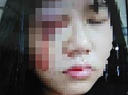 女子被丈夫殴打眼球破裂