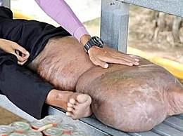 奇闻!柬埔寨男子被蚊子叮咬 腿肿成大象