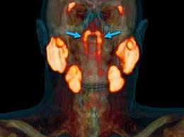 科学家发现人类新器官