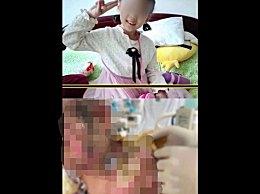 6岁女童遭亲妈钳子拔牙热水浇头