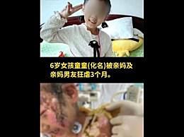 6岁女童遭亲妈钳子拔牙热水浇头 全身数十处骨折曾被下病危通知