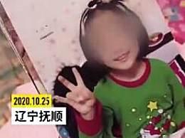 6岁女童遭亲妈拔牙热水浇头