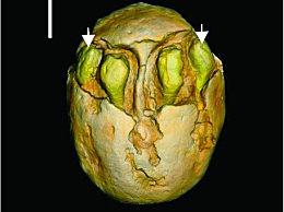 1500万年前的枣被发现