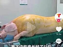 医院回应让烧伤病人移植猪皮